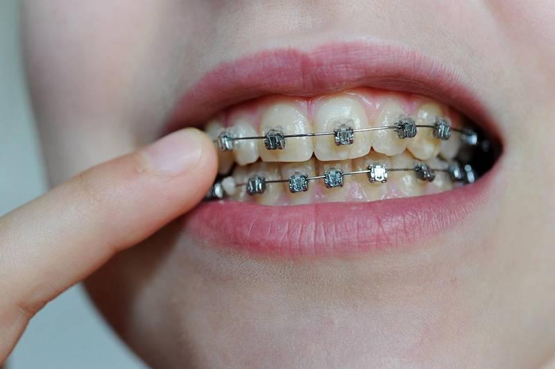 Bildet viser en jente med tannregulering. Mange færre barn en i dag bør få tannregulering. Det mener et utvalg.