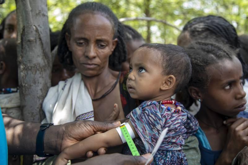 Bildet viser en kvinne i Tigray som holder et lite barn mens det blir undersøkt for underernæring.