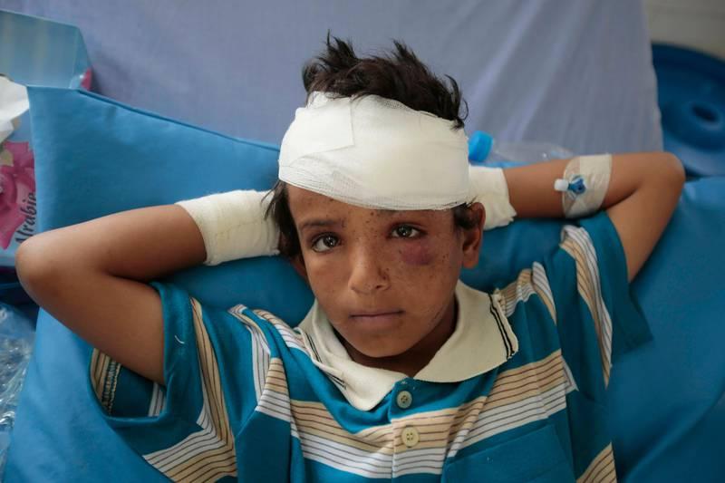 Bildet viser en gutt som er skadd i krigen i Jemen.